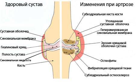Артроз при синдроме Элерса-Данлоса