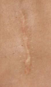 skin-scar-EDS