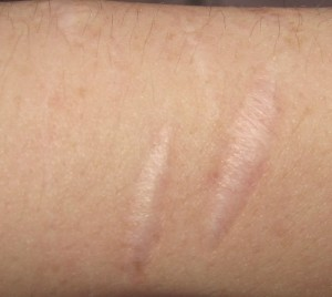 skin-scar-EDS2
